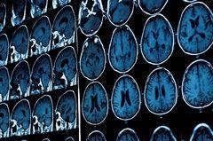 El Instituto Nacional de Ciencias Fisiológicas de Japón y su liderazgo mundial en neurología